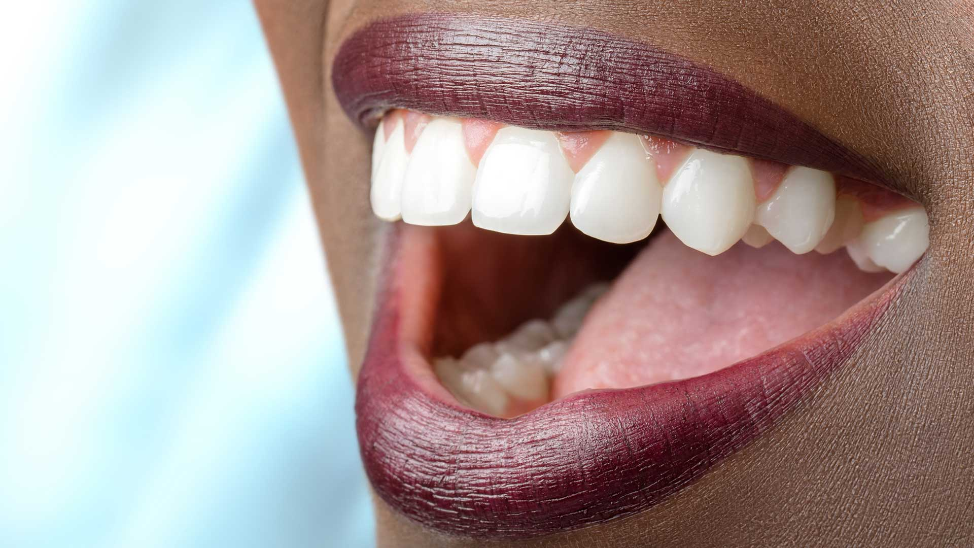 veneers in atlanta ga