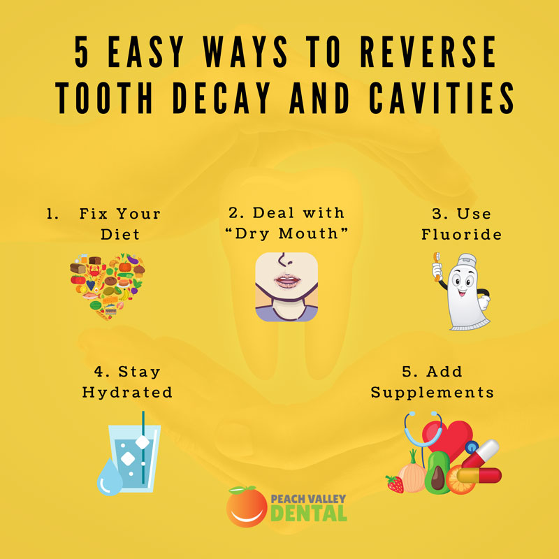 5 Easy Ways To Reverse Tooth Decay and Cavities